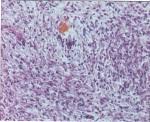 Hemangioma b