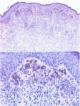 Intramukosal Navus A dan B sel nevus berisi pigmen